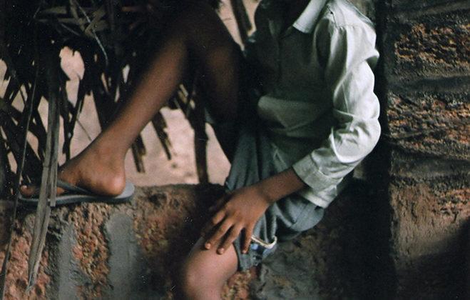 Mat Collishaw - Beggar Boy - 2008 - C-type photo on Dibond - 76 x 126 cm Ed. of 3